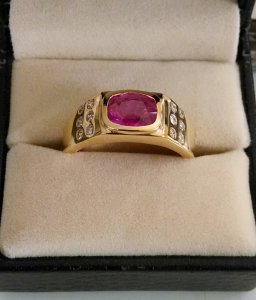 Ruby-diamond Ring